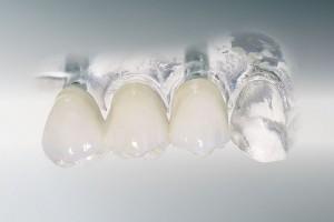 za-implant-fest-bruecke2