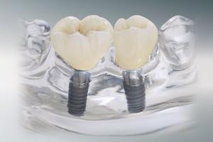 za-implant-fest-krone2