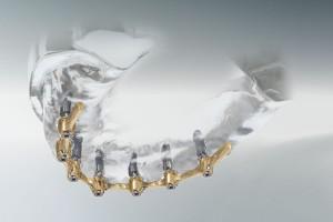 Implantate mit Stegverbindung