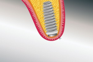 Das Implantat heilt nach der Eingliede- rung ohne Belastung ein.