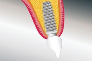Der Zahnersatz ist eingegliedert.