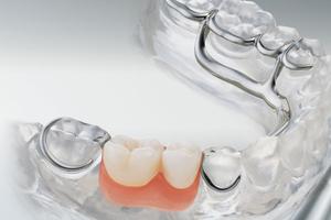 Im Unterkiefer muss bei der Versorgung auch nur einer Seite die gegenüberliegende Zahnreihe mit Klammern an einem Unterzungenbügel versehen werden.